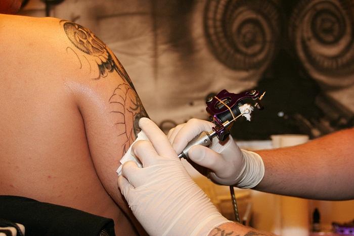 Czy Tatuaż Może Uczulać