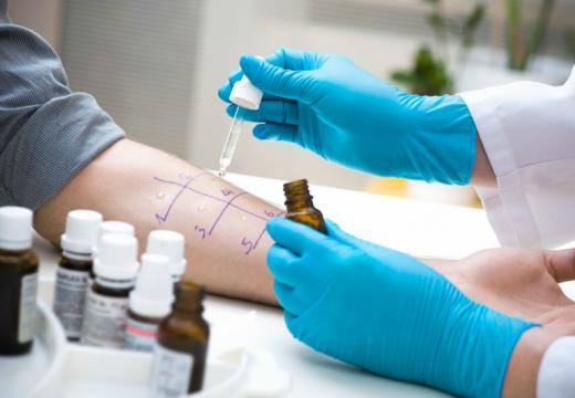 Test skórny a alergia pokarmowa