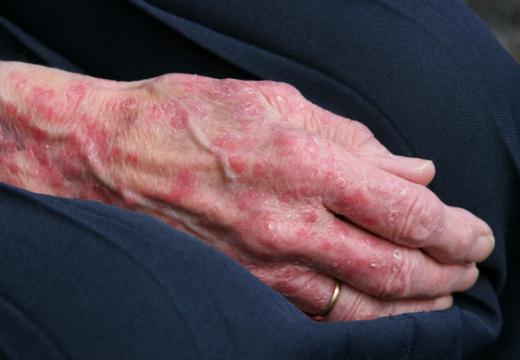 Egzema – alergiczny wyprysk kontaktowy