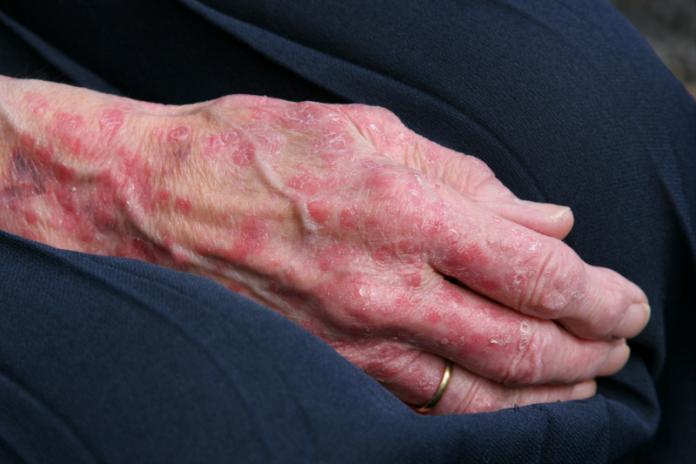 Egzema - alergiczny wyprysk kontaktowy