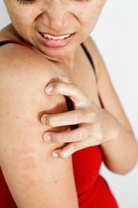 Podrażnienie czy alergia