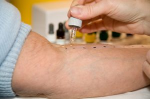 Alergia pokarmowa a testy alergiczne
