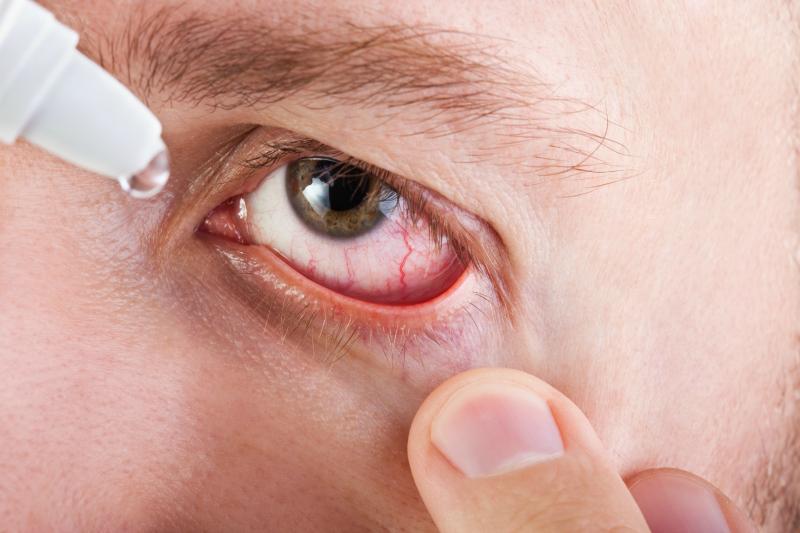 Alergiczne zapalenie spojówek wiosną