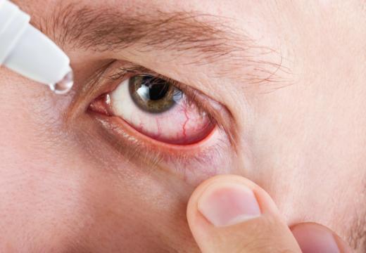 Alergiczne problemy z oczami