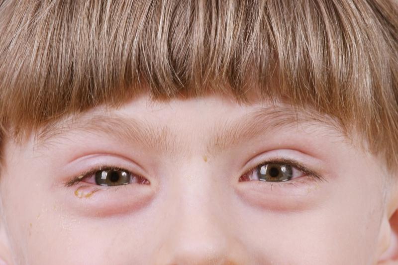 Kto powinien leczyć alergię oczu?
