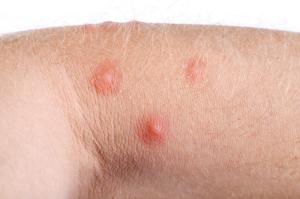 Alergia na mrówki