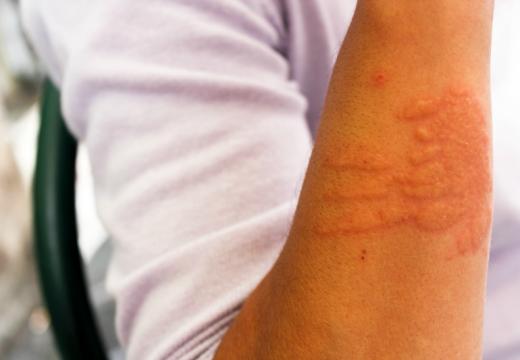 Alergia kontaktowa u osób z AZS