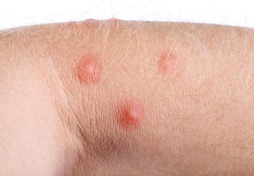 Reakcje skórne przez chryzantemy