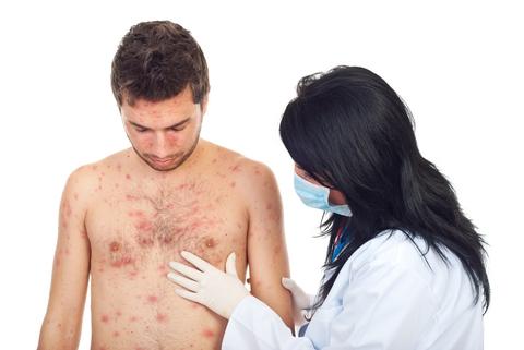 Czy to wysypka alergiczna?