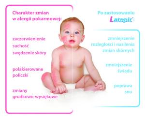 Atopowe Zapalenie Skóry (AZS) u niemowląt, dzieci i dorosłych