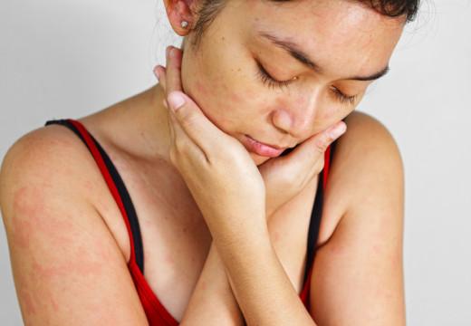 Wysypka alergiczna – kiedy się pojawia?
