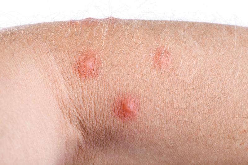 Alergia - swędzenie jako objaw