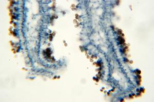Alergia na grzyby w mieszkaniu