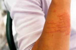 Atopowe zapalenie skóry - fakty i mity