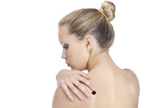 Przyczyny atopowego zapalenia skóry