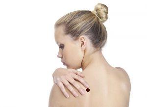 Candida przyczyną problemów ze skórą atopową