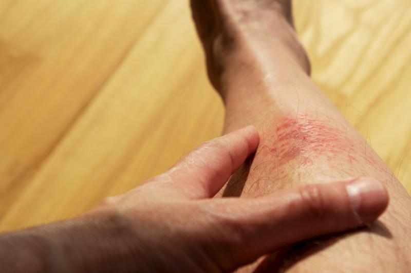 Atopowe zapalenie skóry to nie wyrok! Zahamuj przebieg choroby