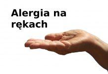 alergia na rękach