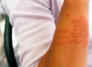 pokrzywka alergiczna