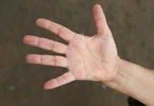 alergiczne kontaktowe zapalenie skóry