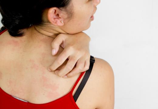 Alergia na słońce – objawy