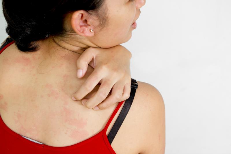 alergia na słońce objawy