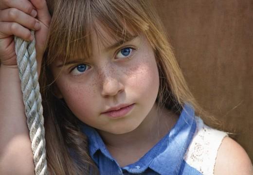 Alergia kontaktowa u chorych na atopowe zapalenie skóry