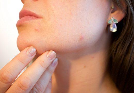 Pokrzywka kontaktowa niealergiczna – jak ją rozpoznać?
