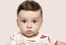 zaczerwieniona skóra u dziecka