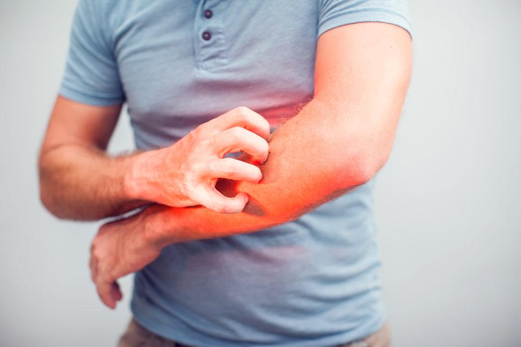 Atopowe zapalenie skóry – kompendium najważniejszych informacji