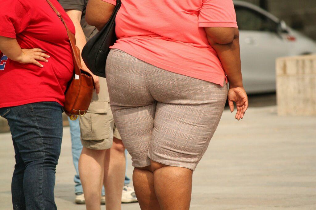 Body positive nie usprawiedliwia chorobliwej otyłości