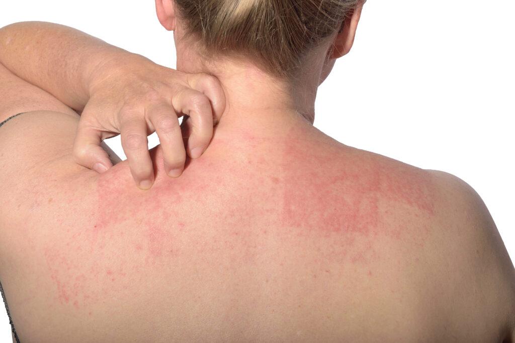Jak poradzić sobie z alergią kontaktową