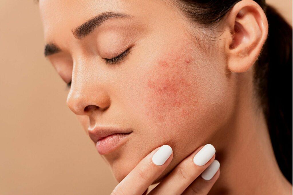 Jak dbać o skórę trądzikową? Oto trzy kosmetyki, które ci w tym pomogą